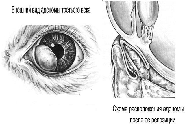 Вид и операция при аденоме третьего века