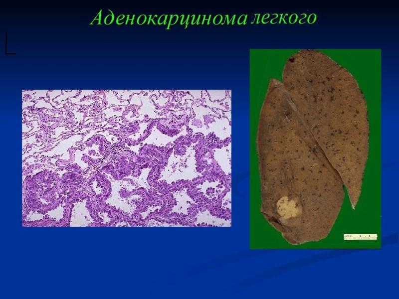 Карцинома у кошек - симптомы, лечение, препараты, причины ... Аденокарцинома Легкого