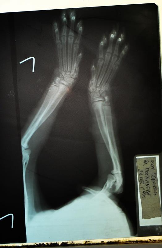 Деформация костей запястного сустава