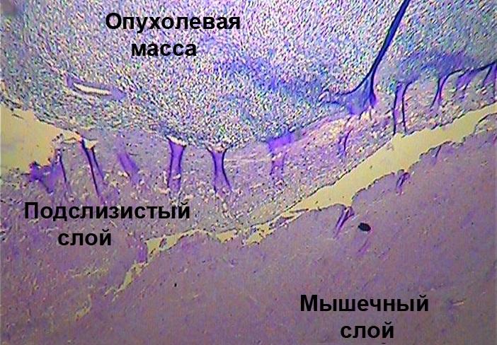 Гистологическая картина карциномы кишечника