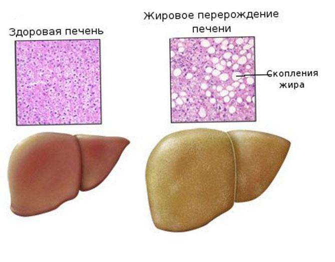 Жировой гепатоз у кошек
