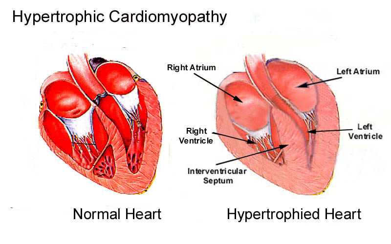 Нормальное и гипертрофированное сердце