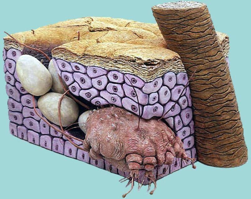 Откладывание яиц клещем в дерме