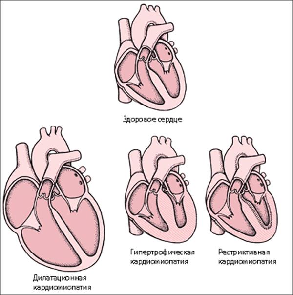 Виды кардиомиопатий у кошек